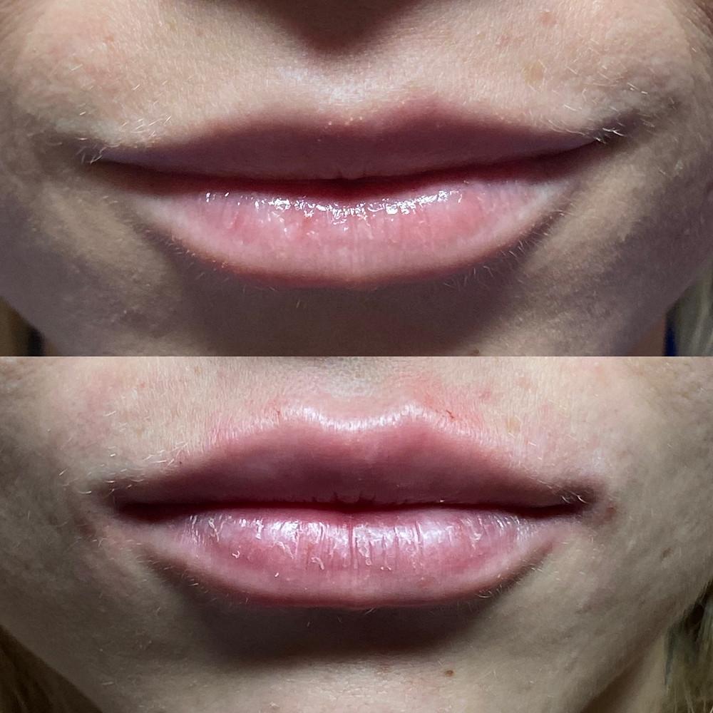 filler labbra milano como lips