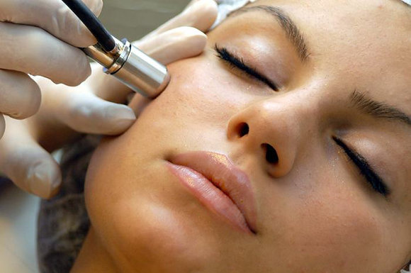 """""""The DivaDerm"""" Microdermabrasion"""