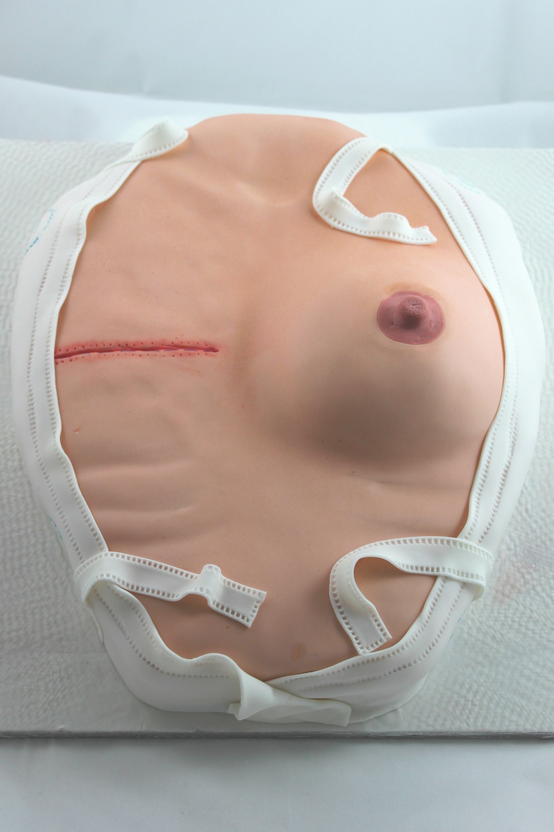 Breast Mastectomy 5.JPG