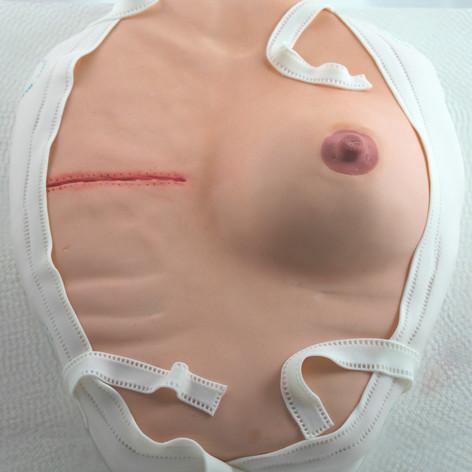 Mastectomy Cake