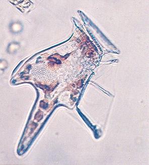 toxic_phytoplanton.jpg