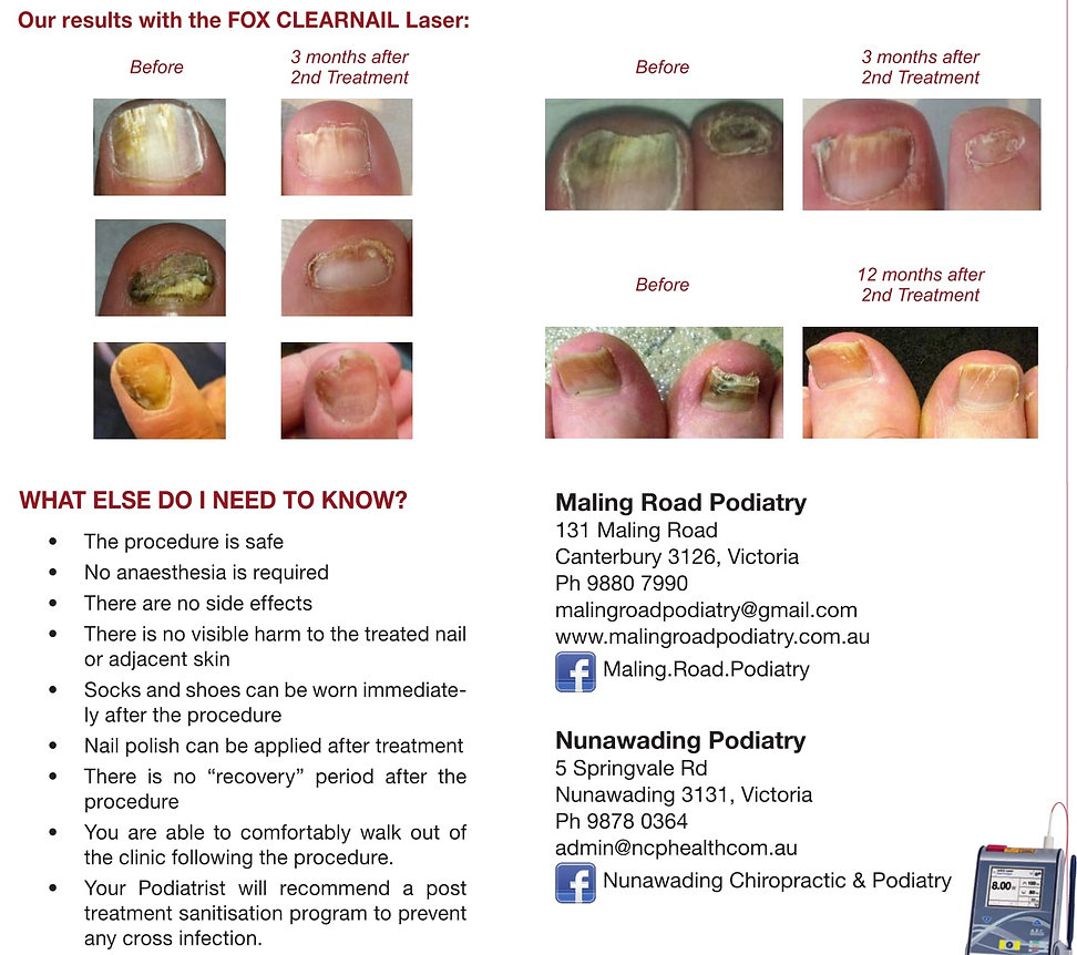 Laser results for Fungal nails before and after