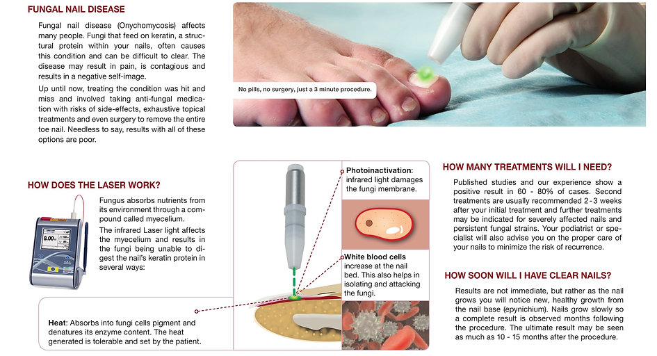 How laser works to cure Nail Fungus