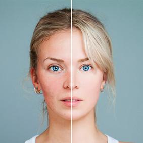 Advantages of Laser Acne Scar Treatment