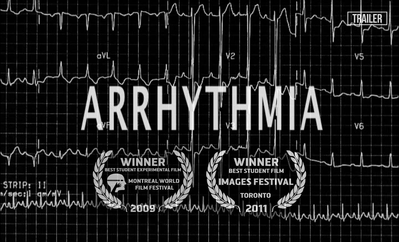 Arrhythmia-thumb-2_edited