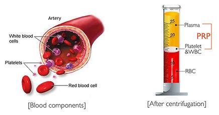 platelet rich plasma PRP melboure