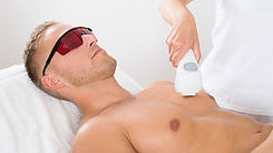 mens laser hair removal.jpg
