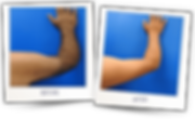upper and lower arms laser.webp