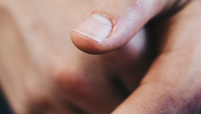Fingernails and your health