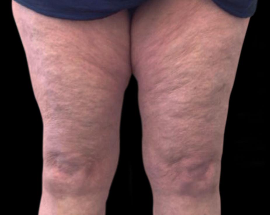 Thighs | After | Vanquish