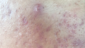 Acne in skin of color: special consideration for diagnosis and management