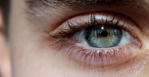 Under Eye Circles