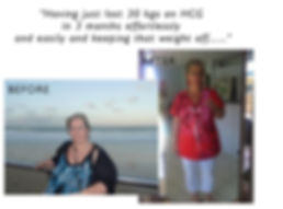Homeopathic HCG Drop Fat Loss Diet - HCG Success Stories #9