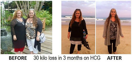 HCG Drops Australia How to lose fat - HCG Success Stories #2