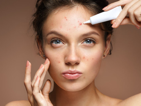 Acne just won't go away?