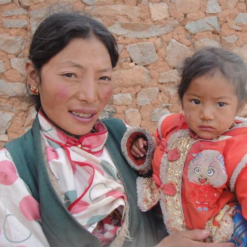 Tibet 9 - Kashin-Beck Disease Fund