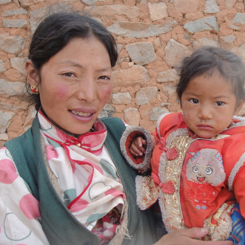 Tibet 9 - Kashin-Beck Disease Fund