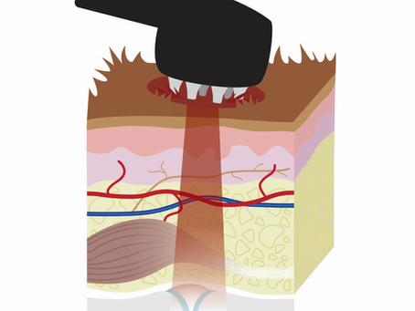 Laserhoitolaitteen valintaopas