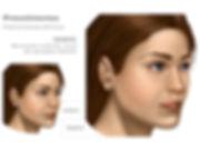 Preenchimento da Face, Preenchimento dos Lábios, Ácido Hialurônico, MD Codes