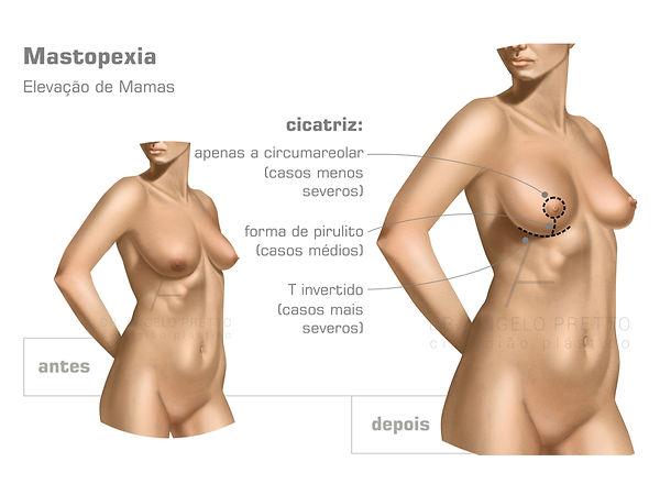 Mastopexia, Mamoplastia, Lifting Mamário, Elevação das Mamas, Cirurgia Plástica das Mamas