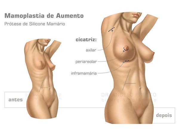 Mamoplastia de Aumento, Prótese de Mama, Prótese de Silicone, Implante de Silicone