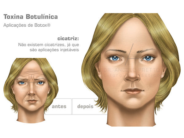 Toxina Botulínica, Botox, Aplicação de Botox