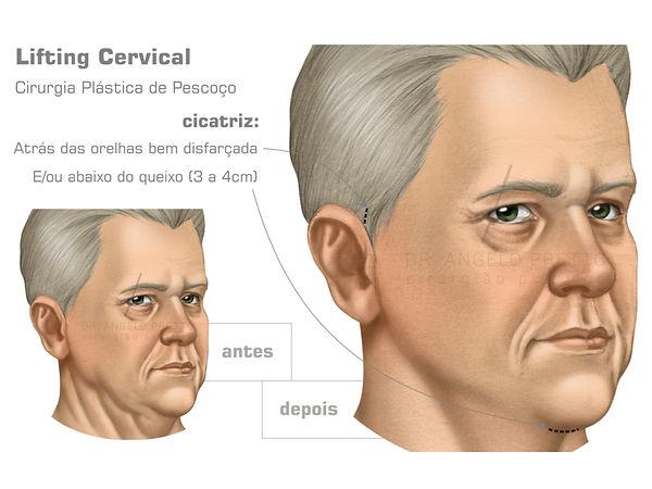 Cervicoplastia, Lifting Cervical, Cirurgia Plástica do Pescoço, Lipoaspiração de Papada