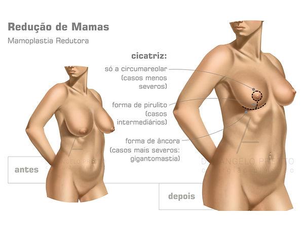 Mamoplastia Redutora, Mamoplastia, Redução das Mamas, Cirurgia Plástica das Mamas