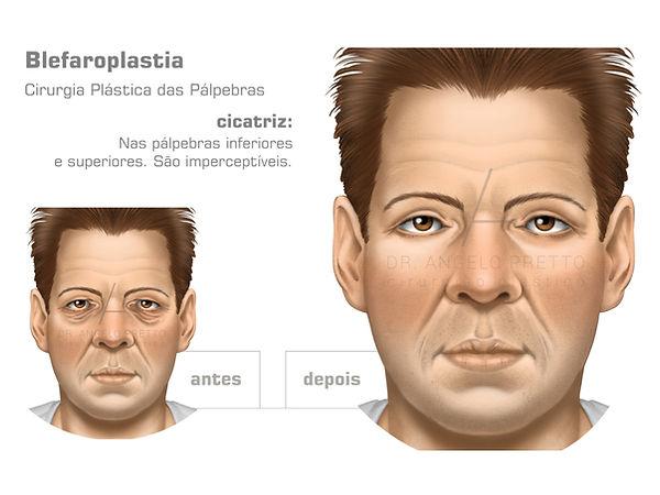 Blefaroplastia, Cirurgia Plástica das Pálpebras