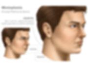 Mentoplastia, Cirurgia Plástica do Queixo, Lipoenxertia de Queixo, Lipoescultura de Queixo, Preenchimento de Queixo