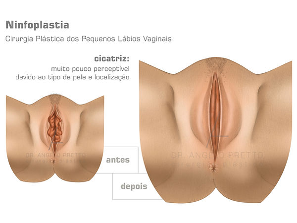 Cirurgia Íntima, Ninfoplastia, Labioplastia, Cirurgia Plástica da Vagina