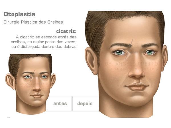 Otoplastia, Cirurgia Plástica das Orelhas em Abano