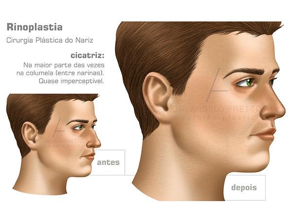 Rinoplastia, Septoplastia, Rinosseptoplastia, Cirurgia Plástia do Nariz
