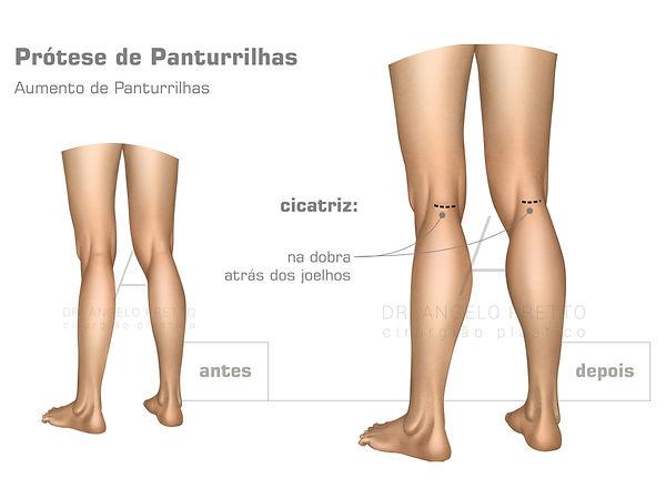 Prótese de Panturrilha, Implante de Panturrilha, Cirurgia Plástica das Panturrilhas
