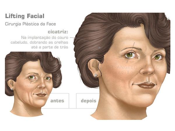 Ritidoplastia, Lifting Facial, Cirurgia Plástica da Face