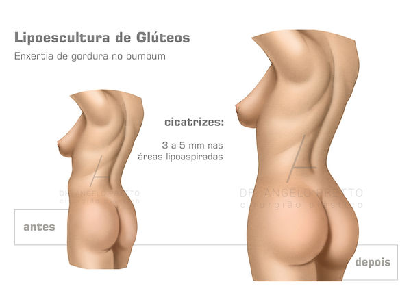 Gluteoplastia, Prótese de Glúteo, Implante de Glúteo, Lipoenxertia Glútea, Lipoescultura Glútea