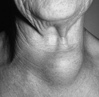 Thyroid Mass