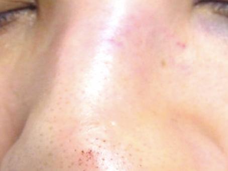 Nasal Fractures