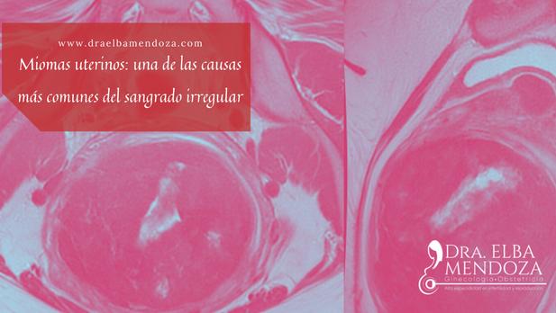 Miomas uterinos: una de las causas más comunes del sangrado irregular