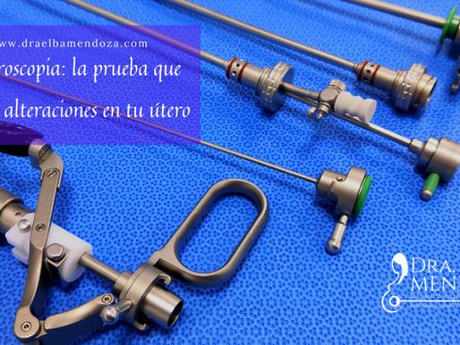 Histeroscopia: la prueba que detecta alteraciones en tu útero