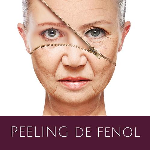 PEELING-de-fenol.png
