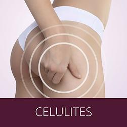 dermatologista-em-santos-celulite