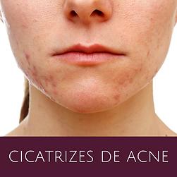 cicatrizes-de-acne.png