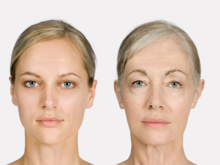 Skin - MSM reduced visible signs of skin aging