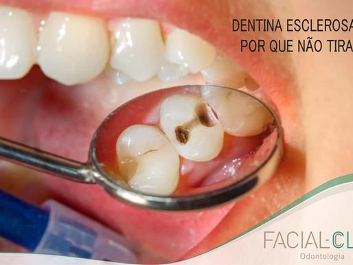 Dentina esclerosada, por que não tirar?