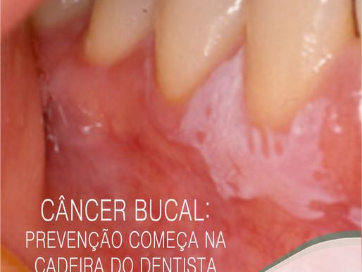 Câncer bucal: prevenção começa na cadeira do dentista