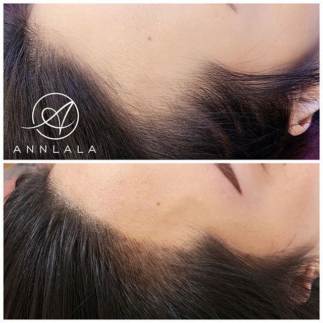 👶童顏髮際線👶 風吹來不再尷尬 全部往後梳也可以 給你自然漂亮的髮際線 擁有