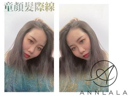 [紋繡]Annlala Beauty童顏髮際線實際體驗/心得分享/永和/板橋