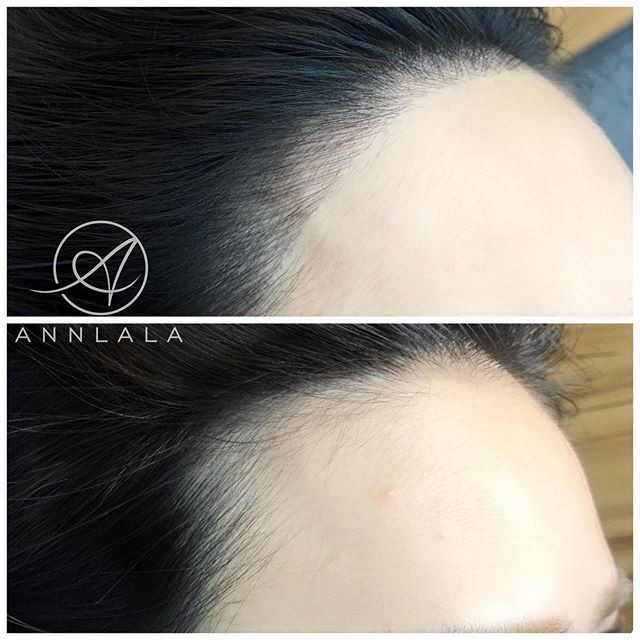 👶童顏髮際線👶 告別高髮線、禿額角 自然地宛如天生毛髮 童顏髮際線 填滿你的