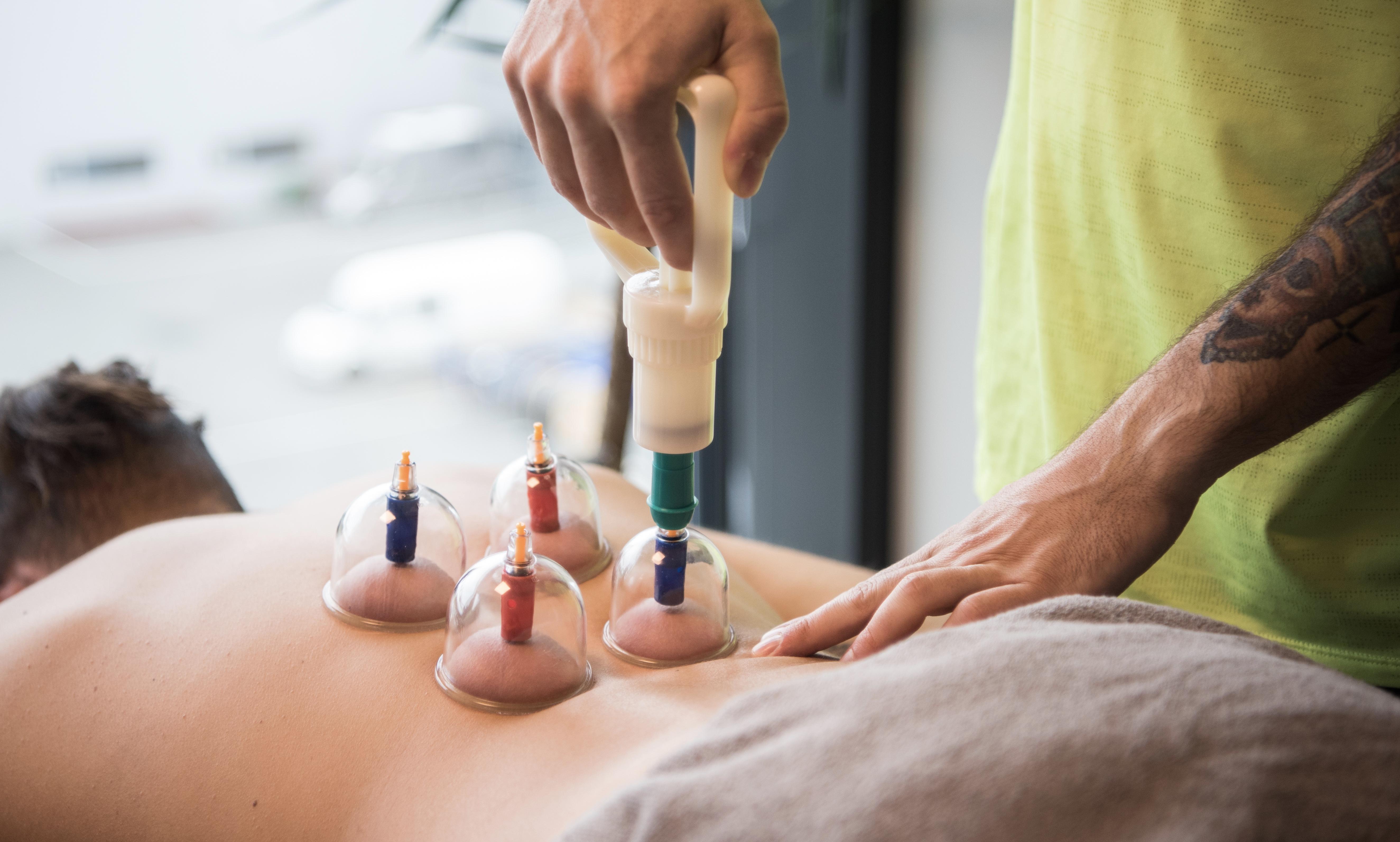 cupping-massage-kroppskod